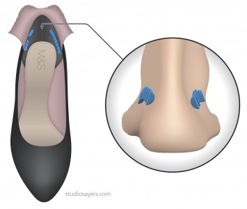 Placement of Insolia Achilles insert