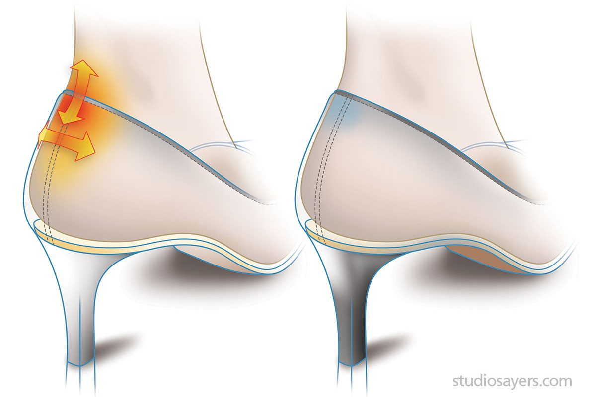 Friction and pain associated with heel discomfort, compared with the benefits of the Achilles insert